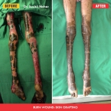 Skin-grafting
