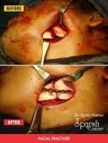 facial-fracture